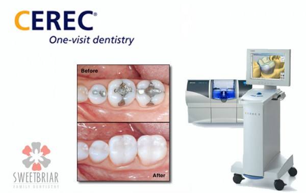 CEREC Crowns and Onlays